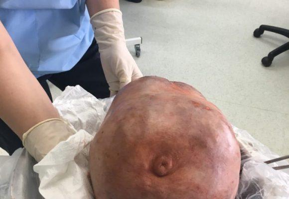 Онко хирурзите от КОЦ-Бургас с уникална операция: Отстраниха 10-килограмов тумор от гърдата на жена