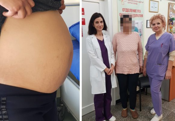 Екип  на отделението по онкогинекология към КОЦ-Бургас отстраниха успешно 8-килограмов тумор от матката на 36-годишна жена